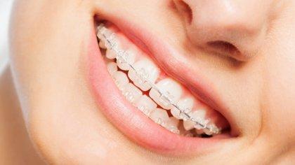 Ostrów Mazowiecka - W trakcie leczenia ortodontycznego szczególnej pielęgnacji w